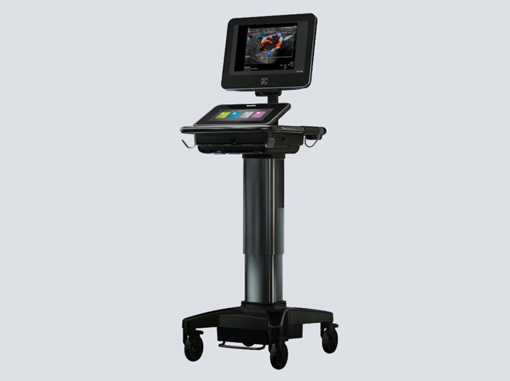 SonoSite X-Porte Ultrasound