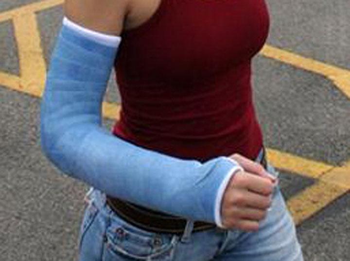 Cast Kit – Long Arm – Fiberglass