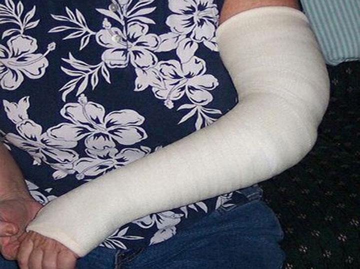 Cast Kit – Long Arm – Plaster