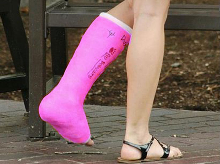 Cast Kit – Short Leg – Fiberglass