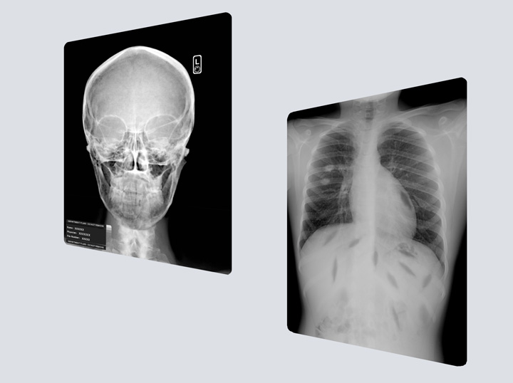 X-rays - Various Stock Prints
