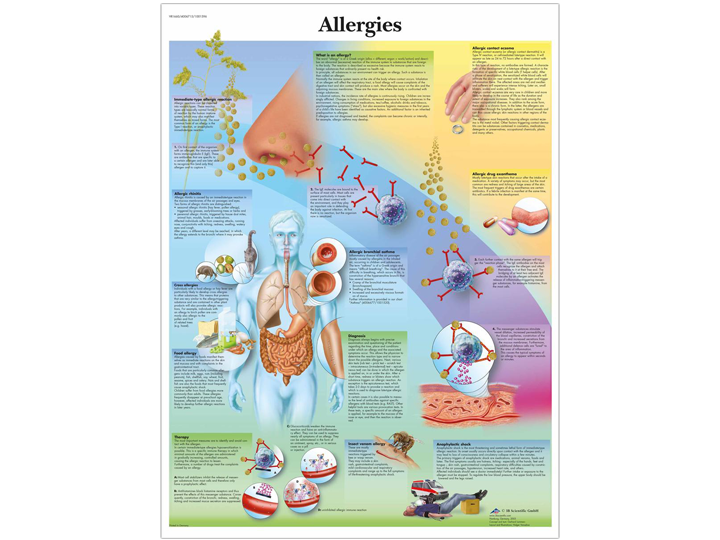 Anatomical Chart - Allergies