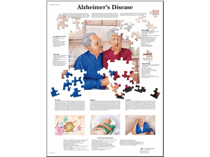 Anatomical Chart - Alzheimer's Disease