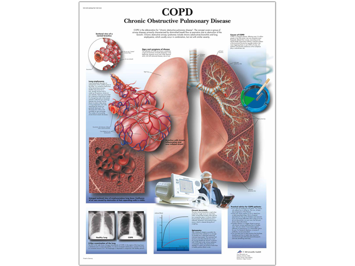 Anatomical Chart - COPD