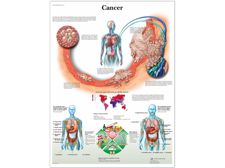 Anatomical Chart - Cancer