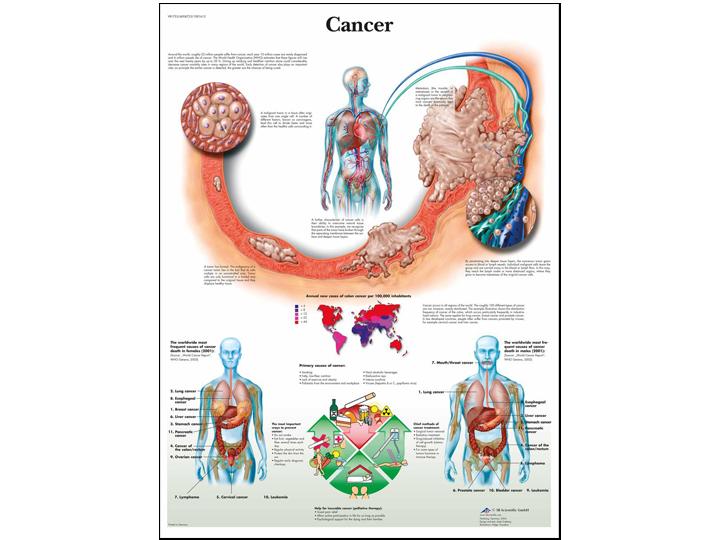 Anatomical Chart - Cancer