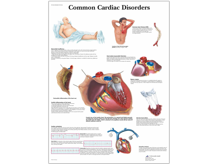 Anatomical Chart - Common Cardiac Disorders
