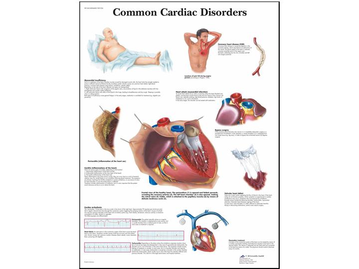 Anatomical Chart - Common Cardiac Disorders
