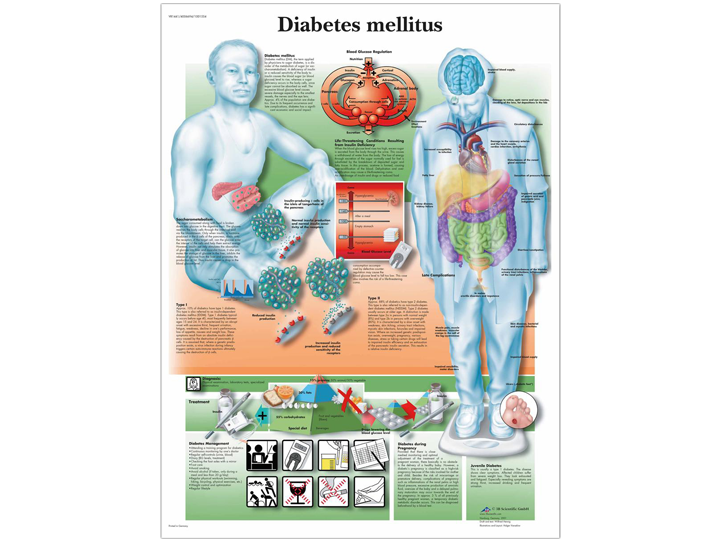 Anatomical Chart - Diabetes Mellitus