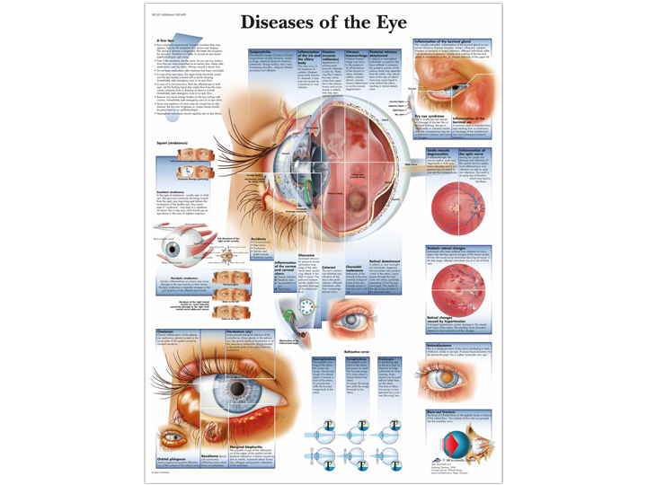 Anatomical Chart - Diseases of the Eye