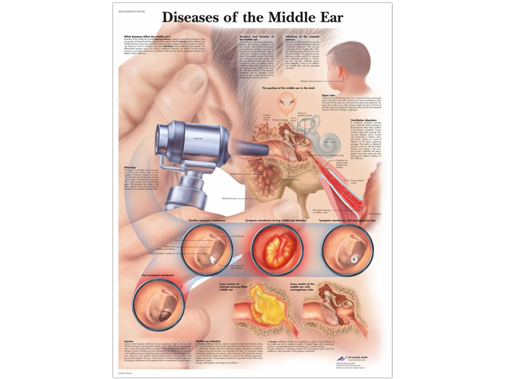 Anatomical Chart - Diseases of the Middle Ear