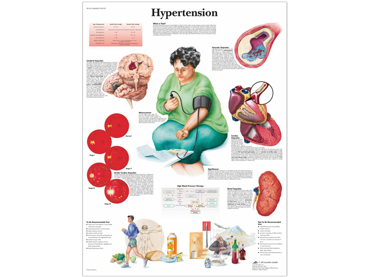 Anatomical Chart - Hypertension