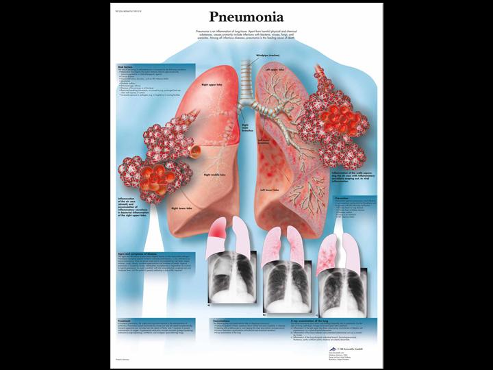 Anatomical Chart - Pneumonia