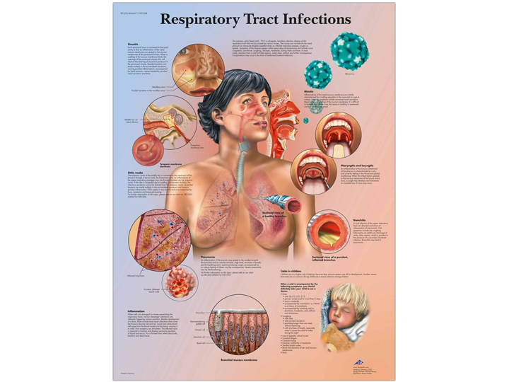 Anatomical Chart - Respiratory Tract Infections