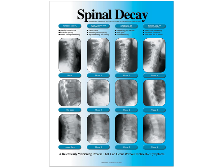 Anatomical Chart - Spinal Decay (Right)