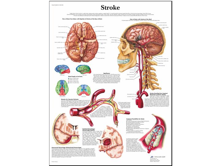 Anatomical Chart - Stroke