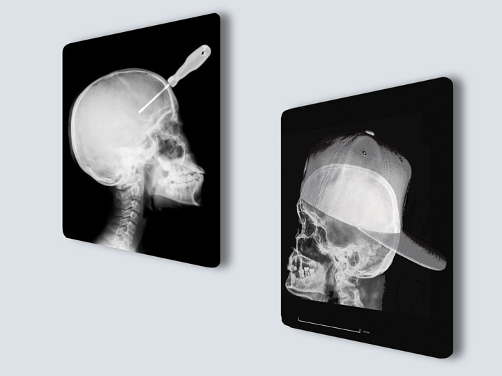 X-rays - Custom Film Prints