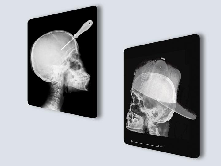 X-rays - Custom Film Prints