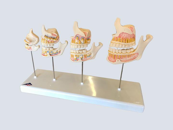 Teeth Model - Set of 4